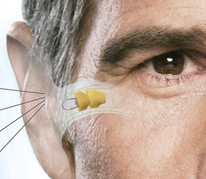 Lyri, the invisible hearing aid, is available at the Center for Hearing and Communication